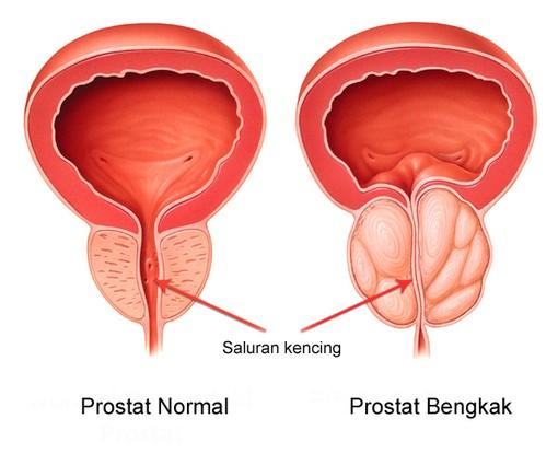 Kanser Prostat Kanser Tahap Serta Kaedah Yang Digunakan Untuk Merawatnya